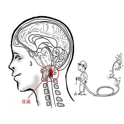 血流障害を起こす『首の歪み』に頭痛の原因がある