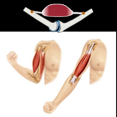 骨(関節)の動きが改善しないことには筋肉は再び硬化する