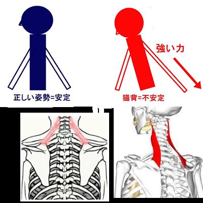 猫背と首痛には密接な関係がある