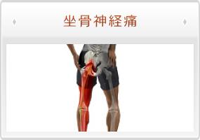 症状の解説:坐骨神経痛