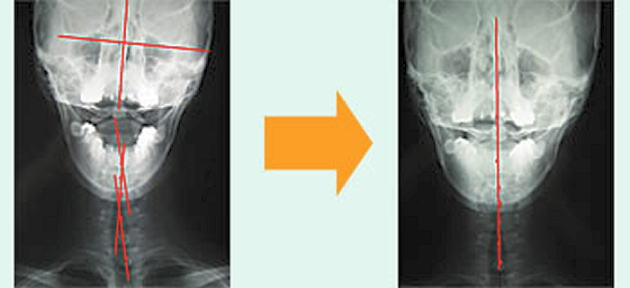 頚椎の歪みを矯正して改善報告