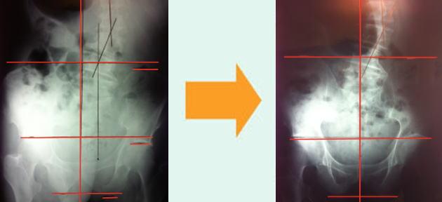 骨盤の左右バランスを矯正し改善報告