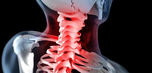 首が痛いなら、必ず首に異常があります。首の痛みの原因を明確にして、首の痛みを解消しましょう