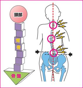 身体の中心軸が歪んでしまうことで基礎がブレて身体に痛みと変調をもたらします