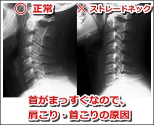 ストレートネックが首コリ・肩こりの原因になっている
