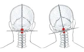 頭痛と首の歪み