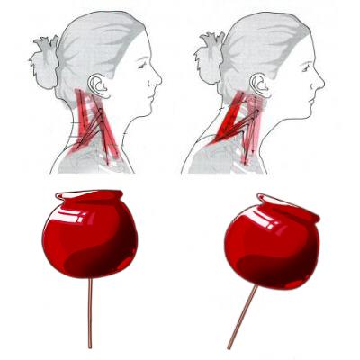 頭の重さを首骨が真下から支える構造にことで頭痛・偏頭痛が起きる