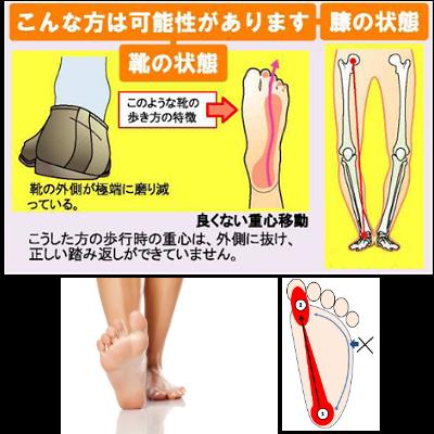 歩くたびに股関節や膝が痛い