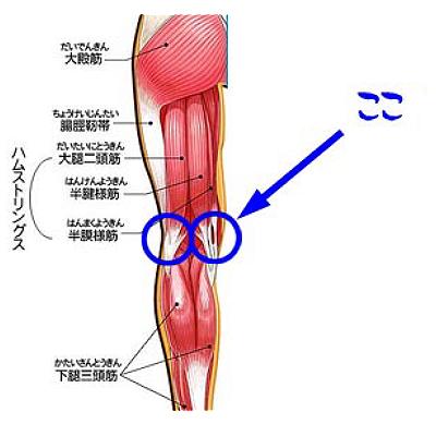 の 痛み 膝 裏側