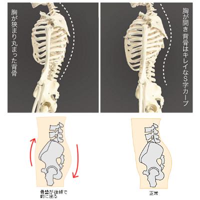 猫背と骨盤
