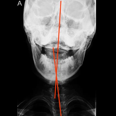 首の痛みの原因は首の歪み