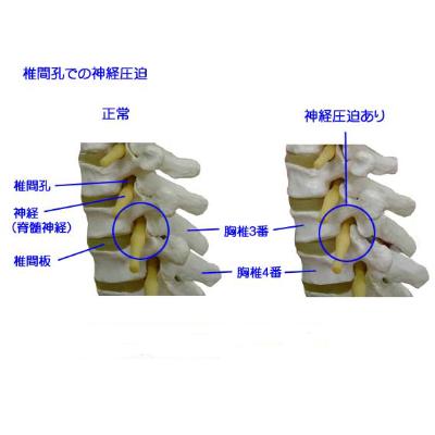 椎間孔狭窄