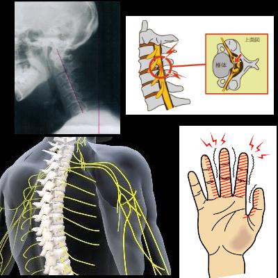 原因を特定し、きちんと対処を行えば首の痛みも腕のしびれも改善