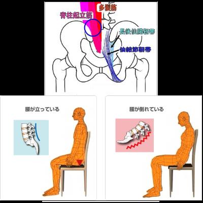 腰痛は大きく2つのパターンに分けられる