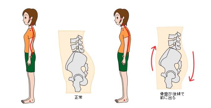 骨盤の後下方変位