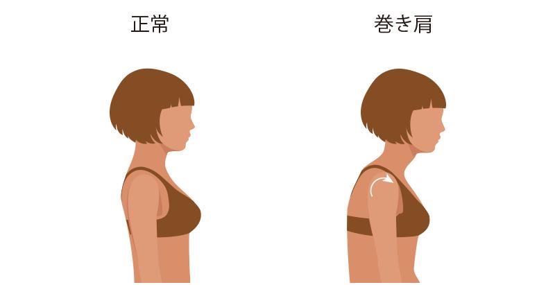 巻き肩による筋肉バランス崩れ